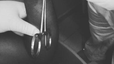 Photo of Hombre le mutila la mano a primo de un machetazo y luego la pica en trozos en El Seibo