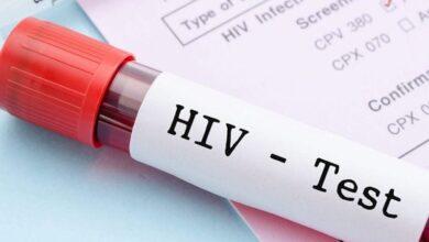 Photo of En R.D. hay más de 64 mil enfermos de VIH; 12 han dado positivo al COVID-19