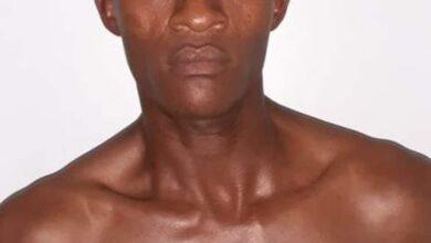 Photo of Joven falleció a consecuencia de los golpes en la cabeza propinados supuestamente por su primo