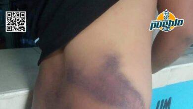 Photo of Policía dice desconocer cómo joven resultó agredido durante incidente con agentes en Bonao