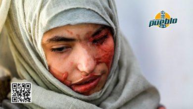 Photo of Una joven yemení es obligada a casarse a los 12 años y posteriormente su marido le desfigura el rostro con ácido
