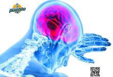 Photo of Enfermedad cerebrovascular es segunda causa de muerte en el mundo