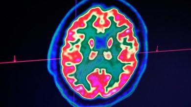Photo of Un tercio de contagiados de covid sufre problemas neurológicos o psicológicos posteriores