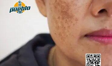 Photo of Recetas caseras para manchas oscuras en la piel